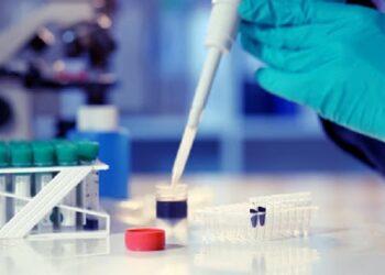 كورونا ..الغاء التحليل الطبي(RT PCR) للوافدين التونسيين من ايطاليا